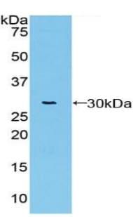 Western blot - Anti-Warp antibody (ab231001)