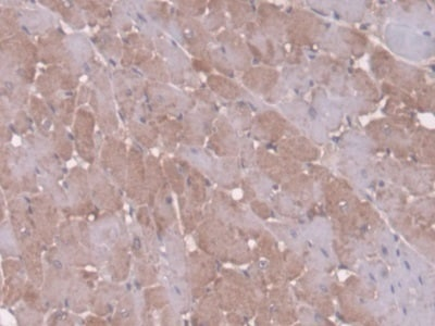 Immunohistochemistry (Formalin/PFA-fixed paraffin-embedded sections) - Anti-Antithrombin III/ATIII antibody (ab231005)