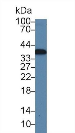 Western blot - Anti-CAMLG/CAML antibody (ab231008)