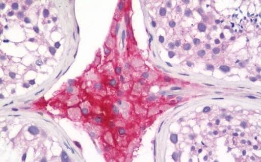 Immunohistochemistry (Formalin/PFA-fixed paraffin-embedded sections) - Anti-TGF beta Receptor III/TGFBR3 antibody [D11G10] (ab231012)