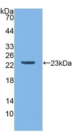 Western blot - Anti-Apo-M antibody (ab231016)