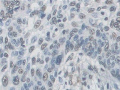 Immunohistochemistry (Formalin/PFA-fixed paraffin-embedded sections) - Anti-AGA antibody (ab231021)
