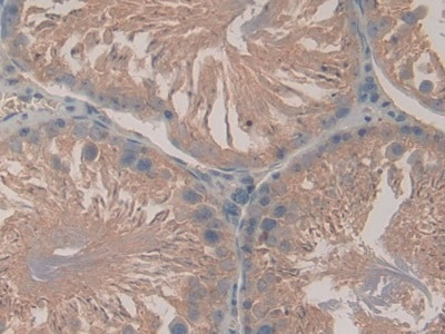Immunohistochemistry (Formalin/PFA-fixed paraffin-embedded sections) - Anti-LPO antibody (ab231026)