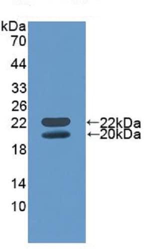 Western blot - Anti-IGFBP3 antibody (ab231034)