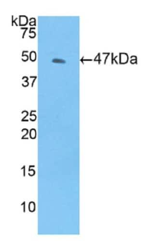 Western blot - Anti-TIMP4 antibody (ab231037)