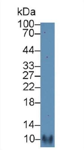 Western blot - Anti-RANTES antibody (ab231041)