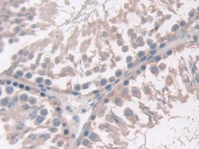Immunohistochemistry (Formalin/PFA-fixed paraffin-embedded sections) - Anti-Adiponectin Receptor 2/ADIPOR2 antibody (ab231051)