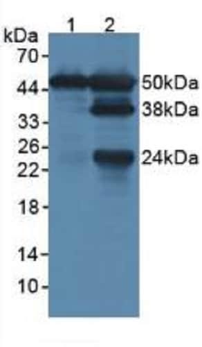 Western blot - Anti-LSP1 antibody (ab231062)