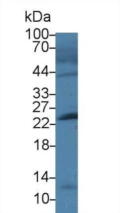 Western blot - Anti-Cardiac Troponin I antibody (ab231064)