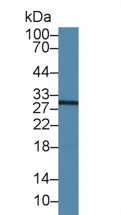 Western blot - Anti-Caspase-14 antibody (ab231071)
