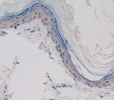 Immunohistochemistry (Formalin/PFA-fixed paraffin-embedded sections) - Anti-Caspase-14 antibody (ab231071)
