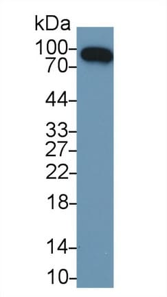Western blot - Anti-Factor B antibody (ab231072)