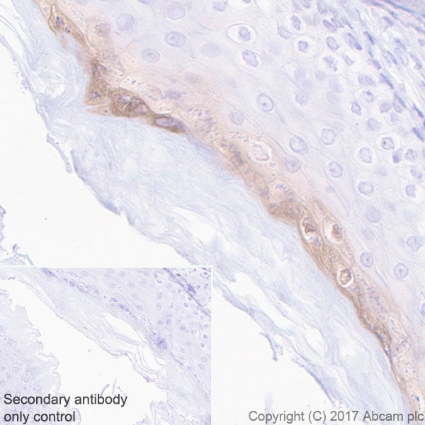 Immunohistochemistry (Formalin/PFA-fixed paraffin-embedded sections) - Anti-GSDMA antibody [EPR19858-104] - BSA and Azide free (ab231077)
