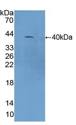 Western blot - Anti-C4a antibody (ab231090)