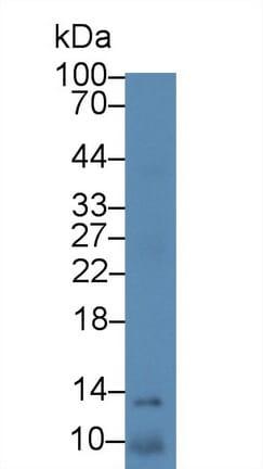 Western blot - Anti-S100A11 antibody (ab231091)