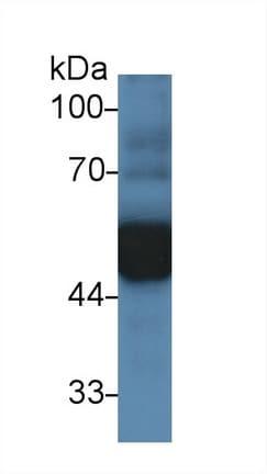 Western blot - Anti-alpha 1 Antitrypsin antibody (ab231093)