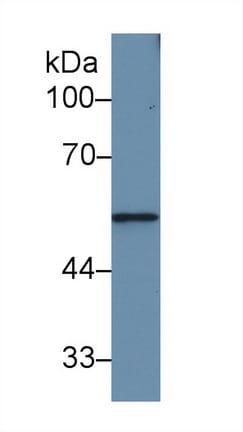 Western blot - Anti-MMP12 antibody (ab231096)