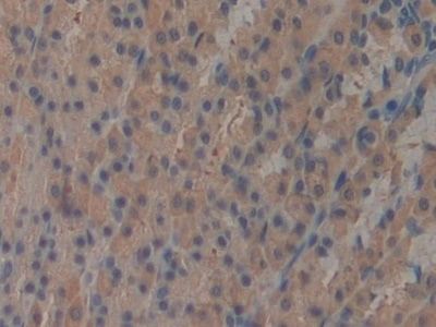 Immunohistochemistry (Formalin/PFA-fixed paraffin-embedded sections) - Anti-ICAM2 antibody (ab231097)