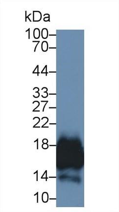 Western blot - Anti-CD59 antibody (ab231105)
