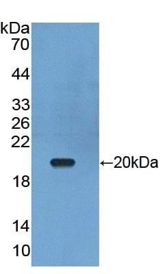 Western blot - Anti-APRIL/TNFSF13 antibody (ab231107)