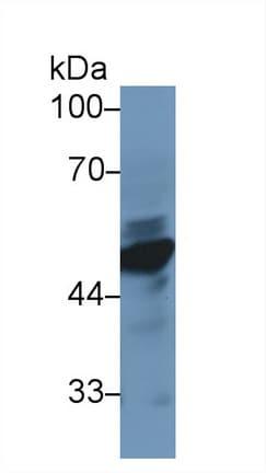Western blot - Anti-NSE antibody (ab231114)