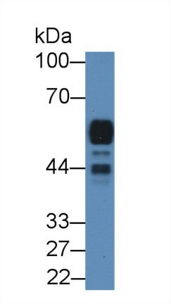 Western blot - Anti-Pancreatic alpha amylase antibody (ab231119)
