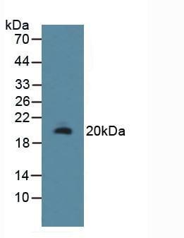 Western blot - Anti-RSPO1 antibody (ab231125)