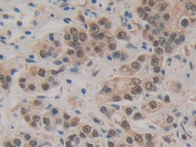 Immunohistochemistry (Formalin/PFA-fixed paraffin-embedded sections) - Anti-Hsp70 antibody (ab231128)