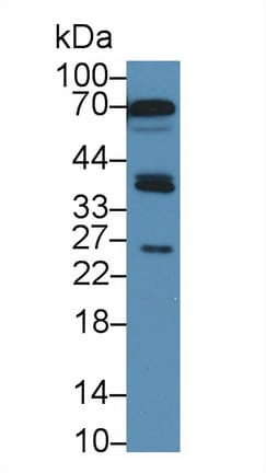 Western blot - Anti-SIRT4 antibody (ab231137)