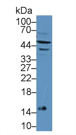Western blot - Anti-IFN-alpha-7 antibody (ab231139)