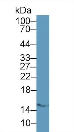Western blot - Anti-FABP5 antibody (ab231143)