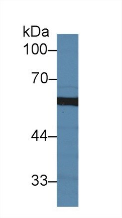 Western blot - Anti-Sulfite oxidase antibody (ab231144)