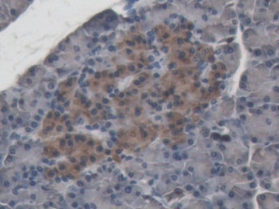 Immunohistochemistry (Formalin/PFA-fixed paraffin-embedded sections) - Anti-ABP1 antibody (ab231147)