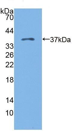 Western blot - Anti-KAZALD1 antibody (ab231151)