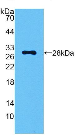 Western blot - Anti-Carbonic anhydrase 2/CA2 antibody (ab231153)