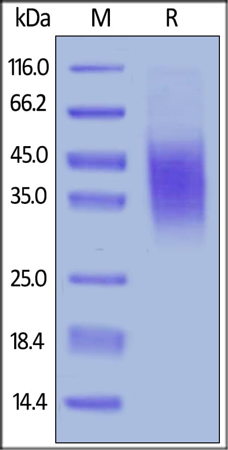 SDS-PAGE - Recombinant mouse CD47 protein (Active) (ab231160)