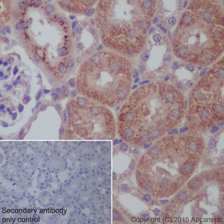Immunohistochemistry (Formalin/PFA-fixed paraffin-embedded sections) - Anti-CPT2/CPT1 antibody [EPR13626] - BSA and Azide free (ab231162)