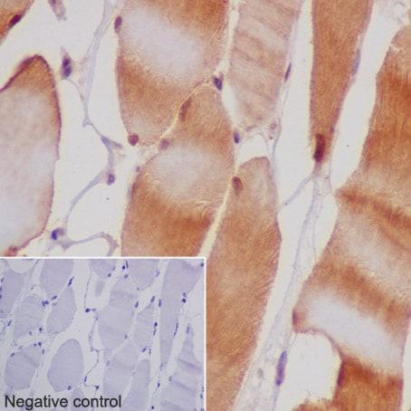 Immunohistochemistry (Formalin/PFA-fixed paraffin-embedded sections) - Anti-MEK3 antibody [EPR17345-104] - BSA and Azide free (ab231166)