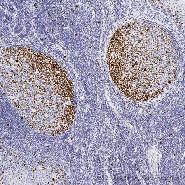 Immunohistochemistry (Formalin/PFA-fixed paraffin-embedded sections) - Anti-Ki67 antibody [SP6] - BSA free (ab231172)