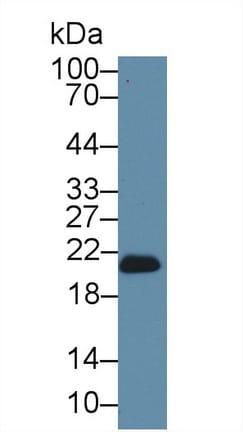 Western blot - Anti-Glutathione Peroxidase 4 antibody (ab231174)