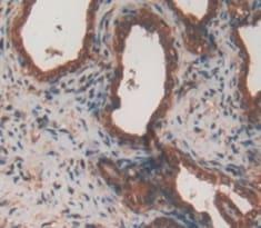 Immunohistochemistry (Formalin/PFA-fixed paraffin-embedded sections) - Anti-ATF1 antibody (ab231180)