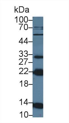 Western blot - Anti-NTF2 antibody (ab231185)