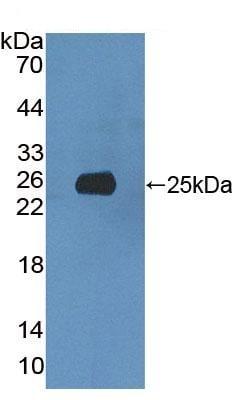 Western blot - Anti-Xrn1 antibody (ab231197)