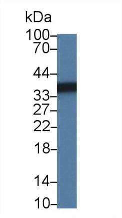 Western blot - Anti-Sorbitol Dehydrogenase antibody (ab231198)