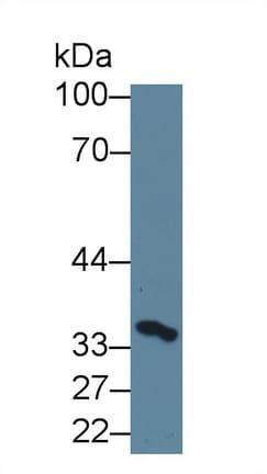 Western blot - Anti-SerpinB3/SCCA antibody (ab231201)
