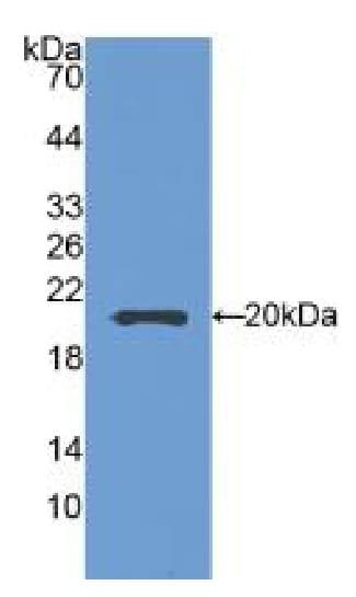 Western blot - Anti-SEMA5B antibody (ab231202)