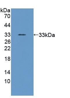 Western blot - Anti-Poliovirus Receptor/PVR antibody (ab231205)