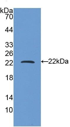 Western blot - Anti-Ferritin Heavy Chain antibody (ab231210)