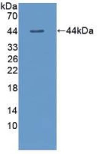 Western blot - Anti-TSH beta antibody (ab231218)