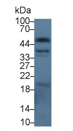 Western blot - Anti-EpCAM antibody (ab231223)